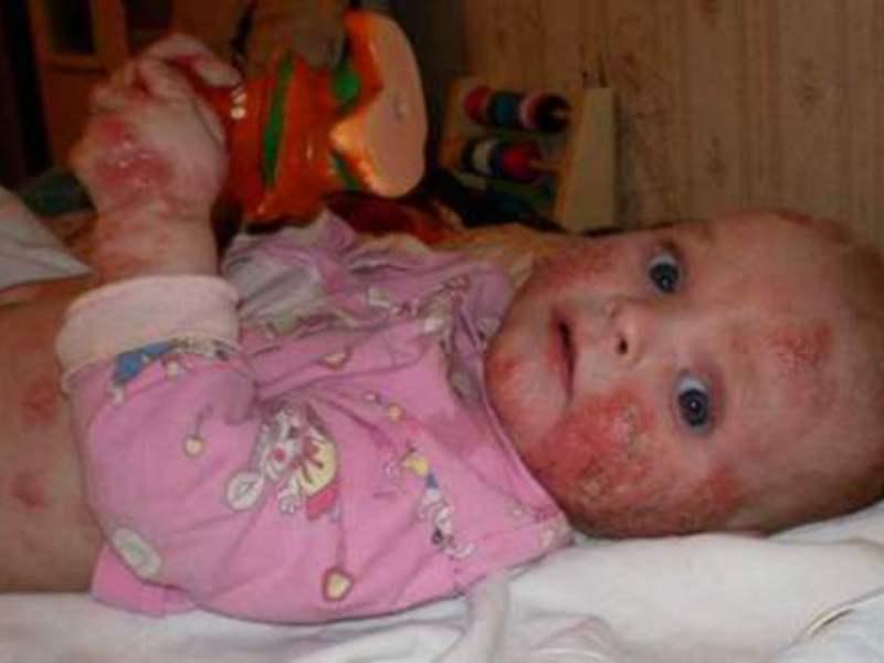 что такое дерматит у детей фото