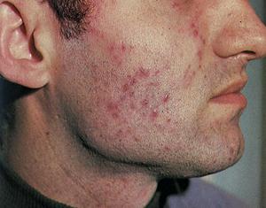 Какими препаратами лечить туберкулез кожи