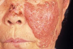 Форма туберкулеза кожи