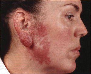 Причины заболевания туберкулеза
