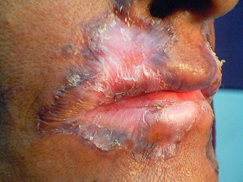 Проявление заболевания туберкулез кожи