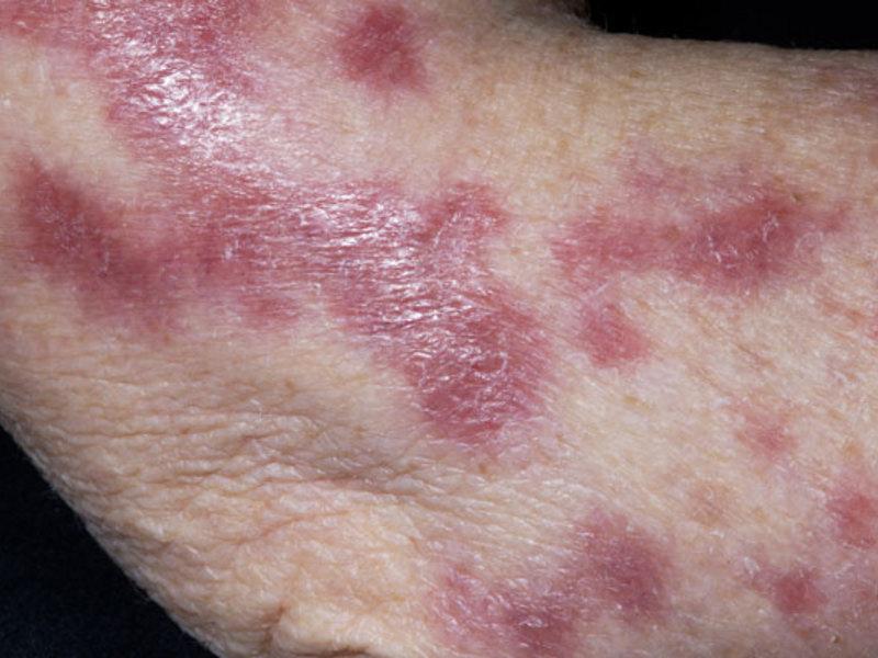 Как избавиться от заболевания туберкулеза кожи