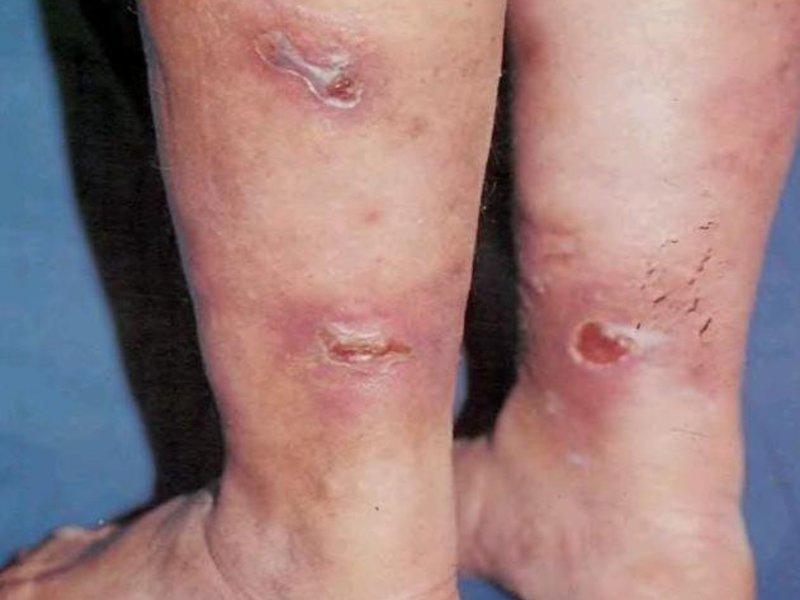 Какова зона поражения кожи теберкулезом