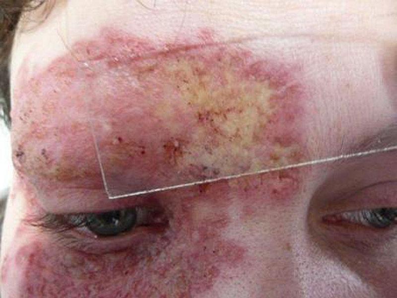 Развития заболевания туберкулеза кожи