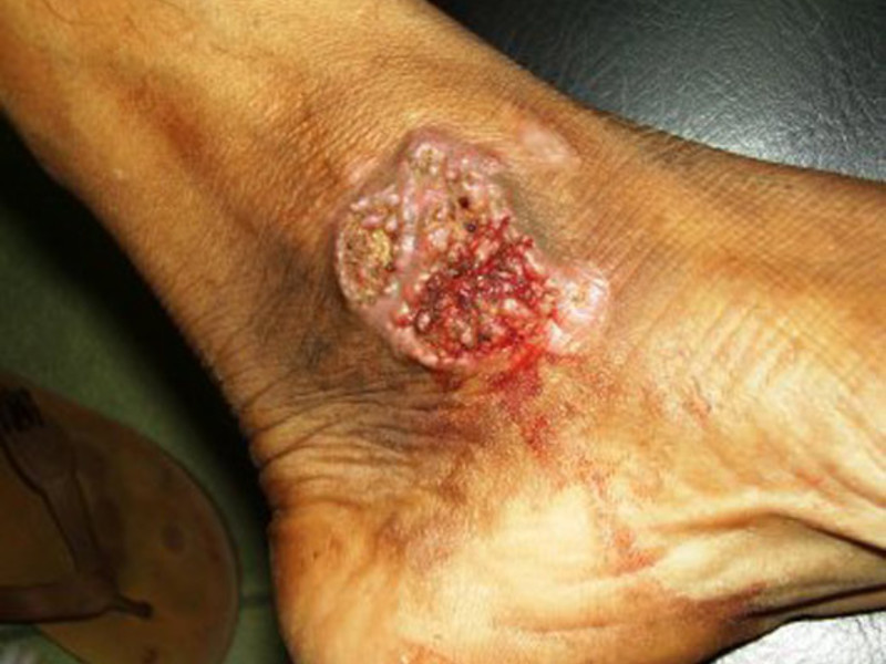 Медикаментозное лечение туберкулеза кожи