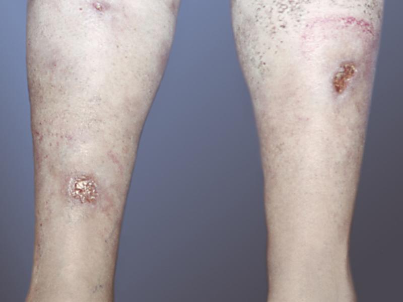 Разновидности заболевания туберкулеза кожи