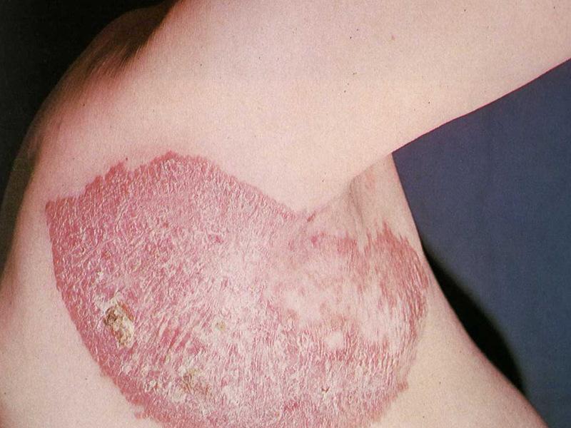Как вылечиться от заболевания туберкулеза кожи