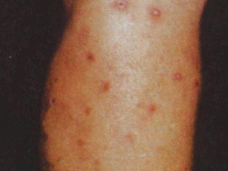 Какие виды туберкулеза есть