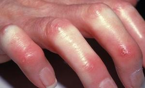 Склеродермия - полисиндромное заболевание, проявляющееся прогрессирующим фиброзом кожи