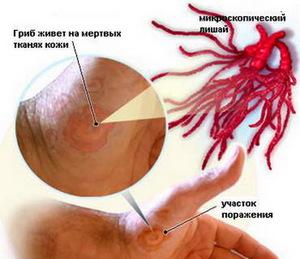 Розовый лишай: симптомы и способы лечения у человека, медицинские лекарства и народные средства