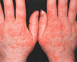 Аллергия на руках появляется по самым разным причинам.
