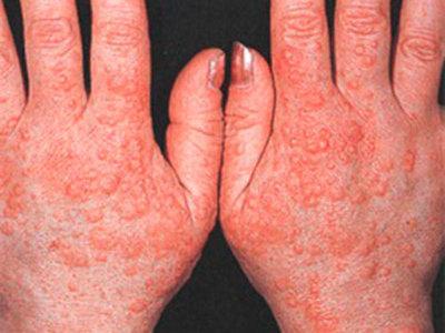 Аллергия сыпь лечение • Как вылечить аллергию