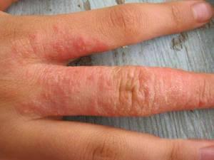 Аллергия на пальцах - это следствие работы с какими-то активными веществами и аллергенами.