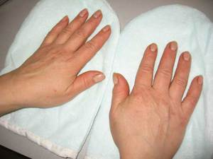 Аллергию можно вылечить при помощи таблеток или мазей.