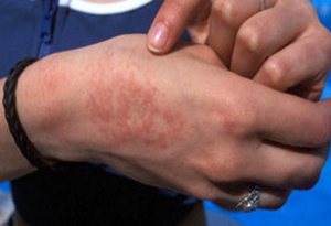 Проявления аллергии могут быть разными - это сыпь, зуд, отечность.