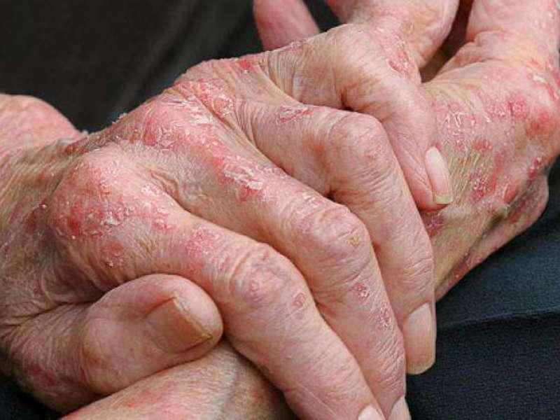 летом аллергия на руках