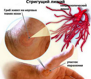 Грибковое поражение кожи может стать причиной лишая.