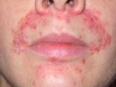 Дерматит на лице у взрослых: причины и лечение