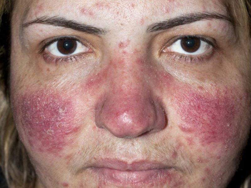 дерматоз на лице фото у взрослых