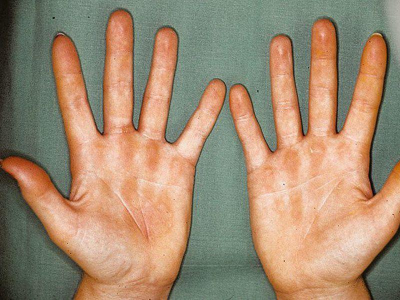 Аллергический дерматоз фото и лечение