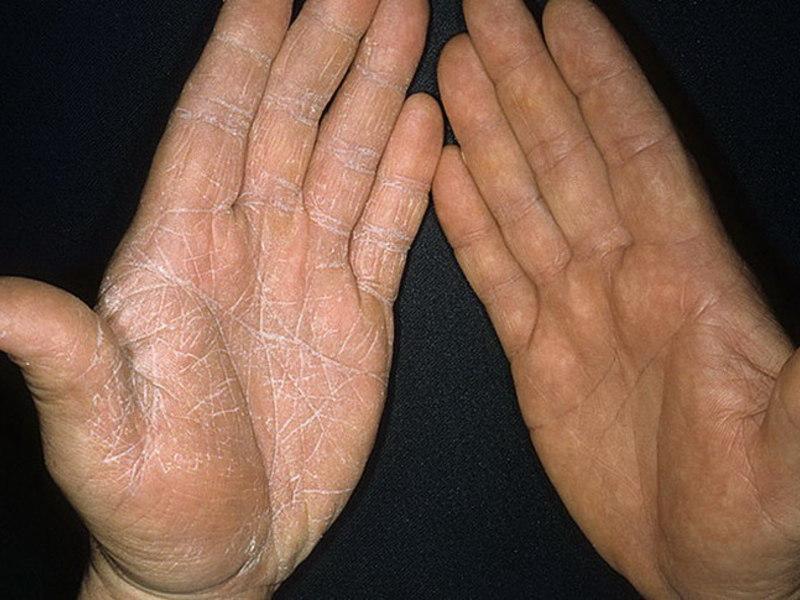 грибок на коже рук фото