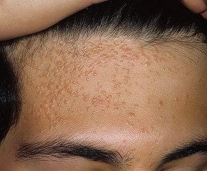 Плоские бородавки: причины их появления и лечение