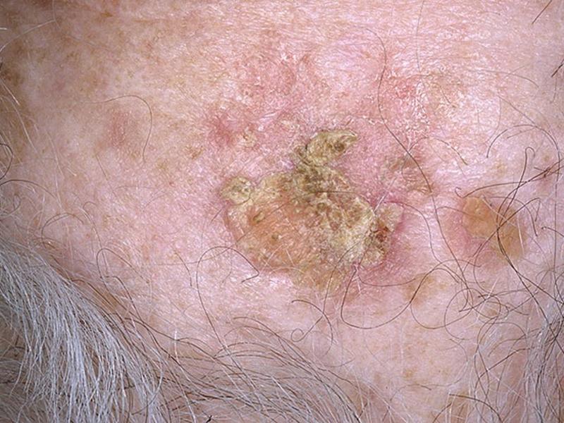 клиника рака кожи картинки его
