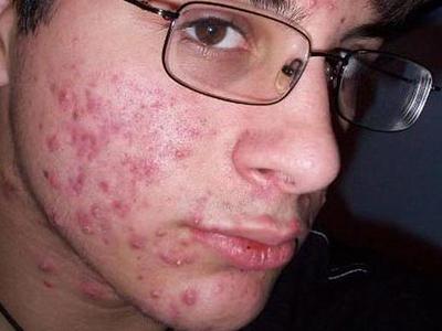дерматит и аллергия в чем разница