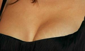 https://dermatolog.guru/images/70321/sredstva-ot-rastyazhek.jpg