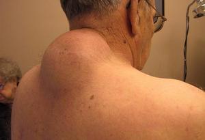 Липома - это заболевание кожи.