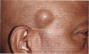 жировик на теле