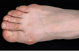 виды мозолей на ногах фото
