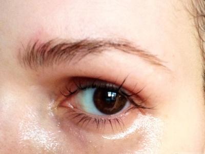 АЕвит для лица: применение от морщин, прыщей, вокруг глаз