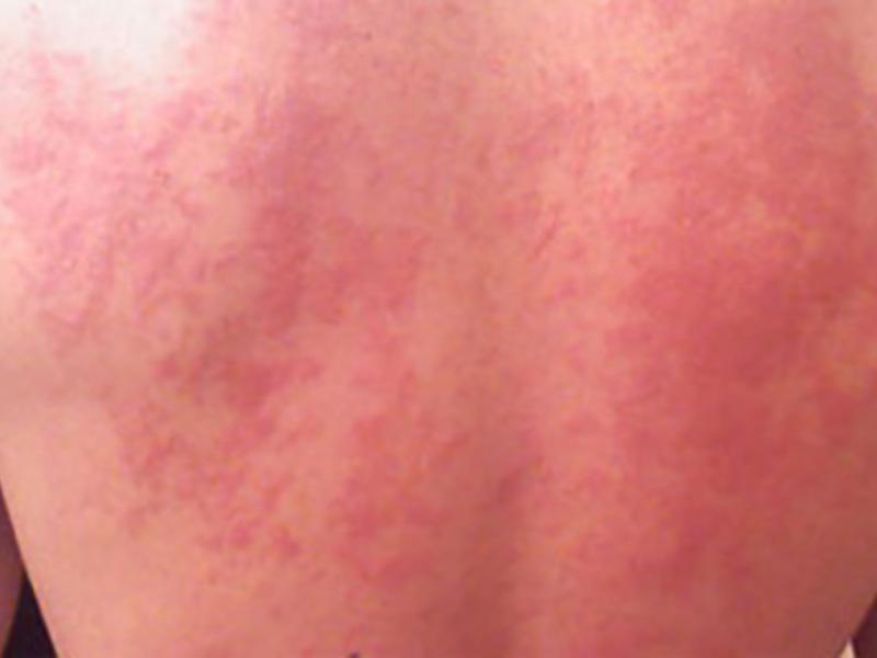 препараты i аллергия