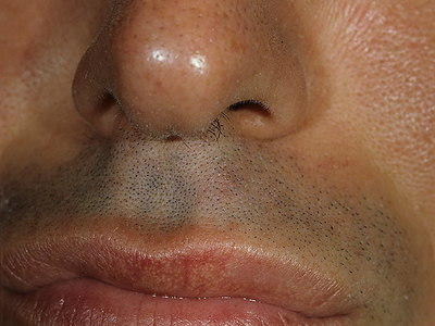 Воспаление гранул фордайса. Причины появления болезни гранул фордайса на губах