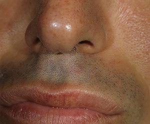Болезнь фордайса на губах фото