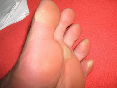 аллергия на ступне фото