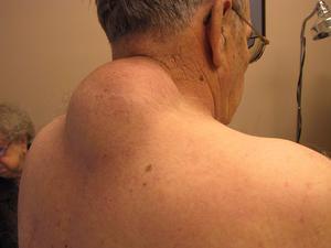 Причины появления и методы лечения жировика на спине и фото липомы