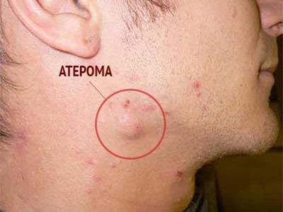 Атерома на лице – симптомы и лечение