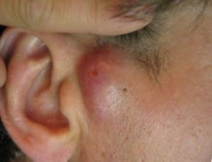 Воспаленная атерома на ухе может стать гнойной.
