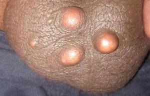 Атеромы на наружных половых органах также возникают достаточно часто.