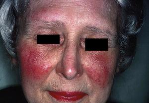 Системная волчанка у женщины на лице - фото.