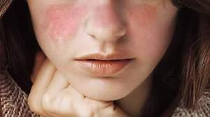 Системная волчанка красная - течение болезни, диагностика, лечение.