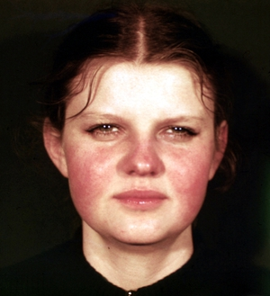 Болезнь Либмана-Сакса начинается с повышения температуры и появления на лице сыпи.