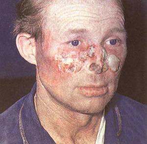 Волчанка красная системная - это не только сыпь, но и комплексное заболевание внутренних органов.