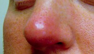 Фурункул может появиться не только на коже, но и, например, в носу