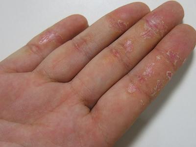 Экзема начальная стадия - симптомы, лечение