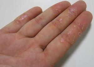Экзема на руках у ребенка причины и лечение отзывы фото