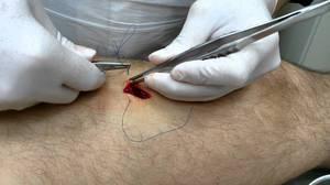 Лечение жировика на ноге