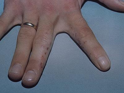 Дисгидроз кистей рук: лечение, фото и причины болезни